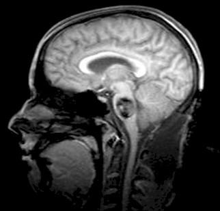 anestesia_cavernoma_protuberancial/tumor_cerebral_RMN