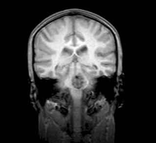 anestesia_cavernoma_protuberancial/tumoracion_intracraneal_RMN