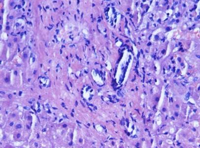 ascitis_artritis_reumatoide/hepatitis_portal_inespecifica