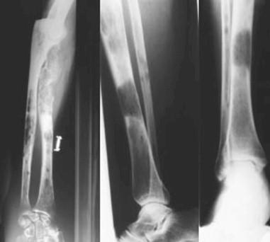 mieloma_multiple_gammapatia/lesiones_osteoliticas_radiologicas