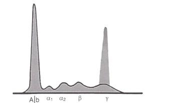 mieloma_multiple_gammapatia/monoclonal_proteinograma_maligno