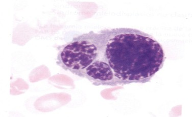 sindrome_mielodisplasico_mielodisplasia/diseritropoyesis_precursor_eritrocitico