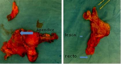 teratoma_maduro_ovario/histerectomia_tumor_ovarico
