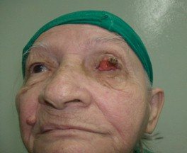 tumor_palpebral_caso/lesion_ulcerosa_parpado