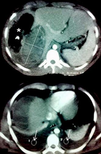 hemangioma_hepatico_gigante/TAC_angioma_higado
