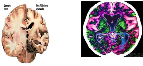 Alzheimer_enfermedad_demencia/lesiones_cerebrales_cerebro