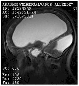 hidrocefalia_congenita_RMN/t2_secuencias_sagitales1