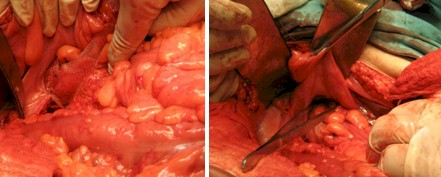 procidencia_aguda_rectal/cirugia_tratamiento_quirurgico