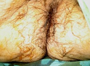 procidencia_aguda_rectal/resultados_cirugia_tratamiento