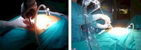 respiracion_diafragmatica_laparoscopia/neumoperitoneo_gas_CO2