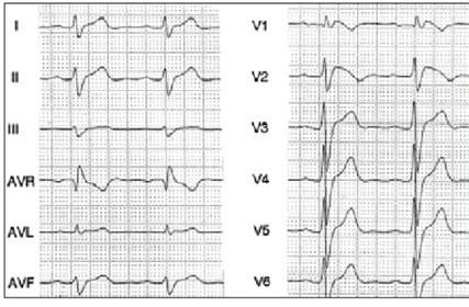 Wolff-Parkinson-White/electrocardiograma_ECG_EKG