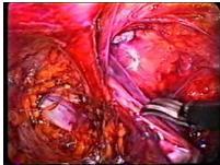 hernia_inguinal_laparoscopia/liberacion_saco