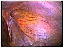 hernia_inguinal_laparoscopia/vision_anatomica_RI