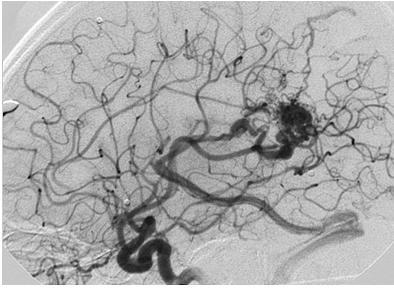 malformaciones_arteriovenosas_cerebrales/angiografia_cerebral