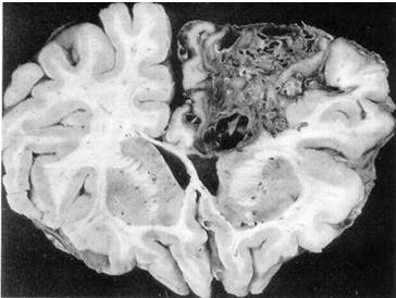 malformaciones_arteriovenosas_cerebrales/mav_cerebral