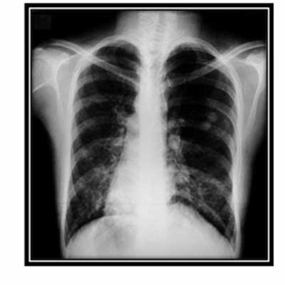 sindrome_Kartagener_caso/clinico_rx_torax