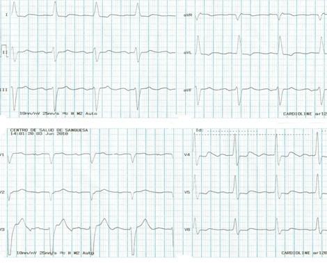 DAI_desfibrilador_implantable/electrocardiograma_ECG_EKG