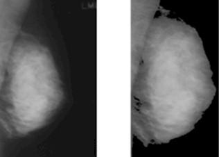 diagnostico_lesiones_mamografia/mamografias_tejido_fibroglandular