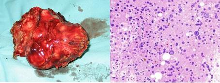 hepatocarcinoma_clinica_tratamiento/tumor_anatomia_patologica