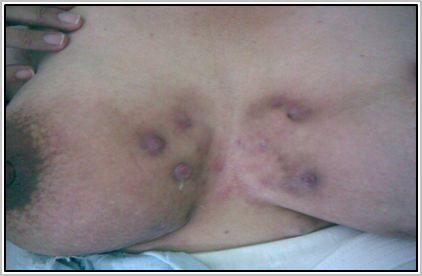 hidroadenitis_supurativa_recidivante/lesiones_maculopapulares_cicatrizales
