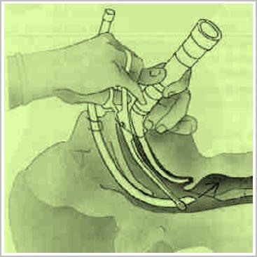 intubacion_endotraqueal_cirugia/intubacion_tecnica