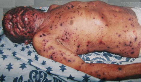 penfigo_foliaceo_endemico/lesiones_dermicas_cutaneas