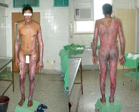 quemado_mineral_quemaduras/lesiones_cutaneas_dermicas