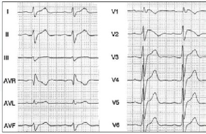 sindrome_Wolff-Parkinson-White/ECG_EKG_electrocardiograma