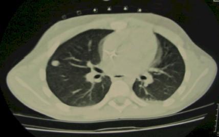 TAC_toracoscopia_nodulo/pulmonar_solitario_localizacion