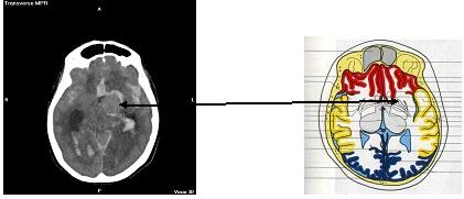 aneurisma_cerebral_roto/ACAI_Anatomia_Localizacion