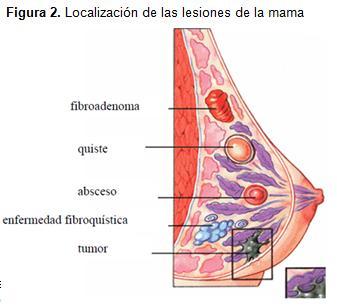 diagnostico_lesiones_mamografias/localizacion_lesiones_mama