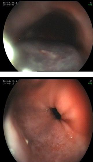 hematoma_esofagico_antiagregacion/lesiones_endoscopicas_endoscopia
