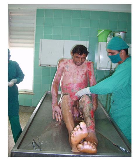 morbimortalidad_quemaduras_mortalidad/foto_paciente_uno