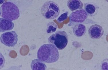 sindrome_Pearson_caso/medula_osea_microscopio