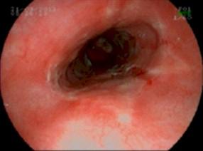 como se puede curar la gastritis
