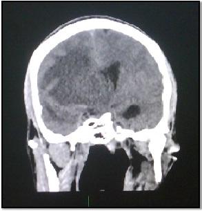 tumor_fantasma_SIDA/Fig.2_desplazamiento_linea_media
