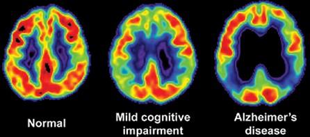 deterioro_cognitivo_familia/enfermedad_Alzheimer_demencia