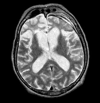 enfermedad_Pick_demencia/atrofia_lobulo_frontal
