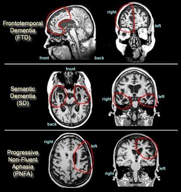 enfermedad_Pick_demencia/resonancia_magnetica_craneal