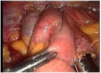 laparoscopia_diagnostico_digestivo/tumor_intestino_delgado