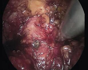 prostatectomia_radical_laparoscopica/identificacion_cuello_vesical