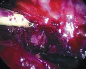 prostatectomia_radical_laparoscopica/liberacion_cuello_vesical