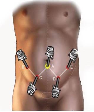 prostatectomia_radical_laparoscopica/posicion_trocares