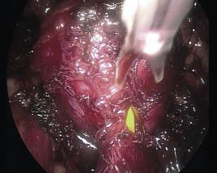 prostatectomia_radical_laparoscopica/seccion_cuello_vesical