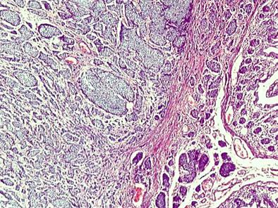 tumor_carcinoide_apendice/biopsia_carcinoides_3