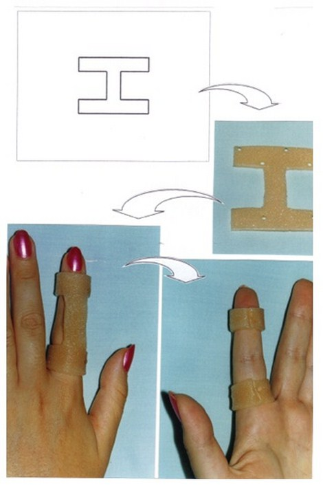 aplicaciones_tecnologia_termoplastica/ejemplo_de_colocacion