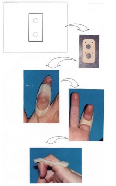 aplicaciones_tecnologia_termoplastica/ejemplo_numero_dos