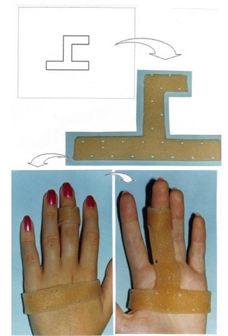 aplicaciones_tecnologia_termoplastica/ejemplo_numero_tres