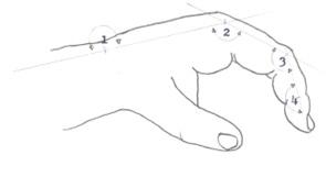 aplicaciones_tecnologia_termoplastica/inmovilizacion_tendones_flexores