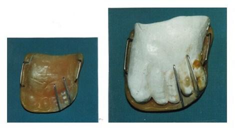 aplicaciones_tecnologia_termoplastica/ortesis_no_dental